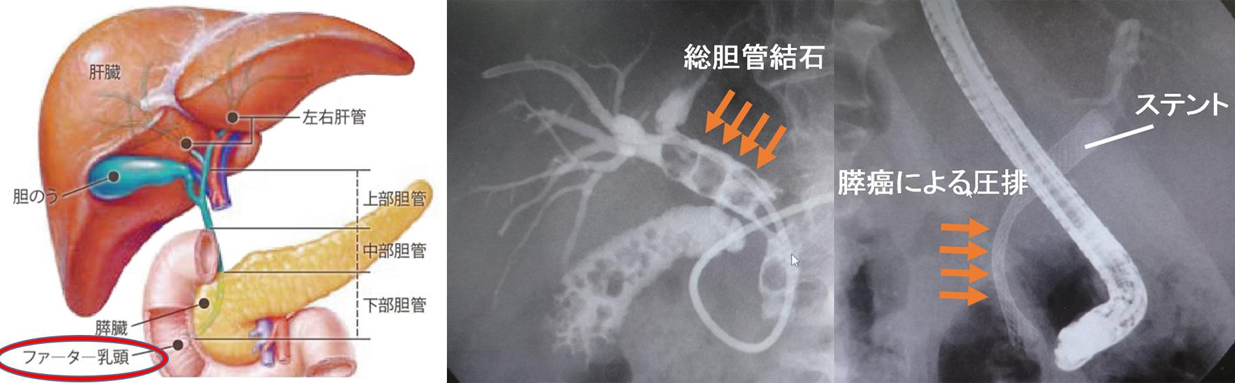内視鏡的逆行性膵胆管造影(ERCP)とは